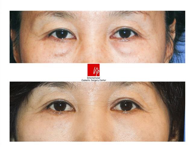 Lower Blepharoplasty - Lower eyelid blepharoplasty (eye bag removal)