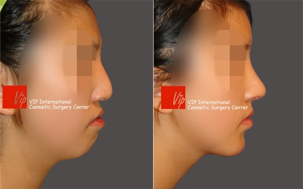 Nose Surgery, Facial Bone Surgery - Humped nose correction (protruded mouth improvement as well)- Rib cartilage rhinoplasty