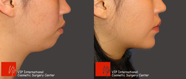 Facial Bone Surgery - Genioplasty - bringing chin bone forward