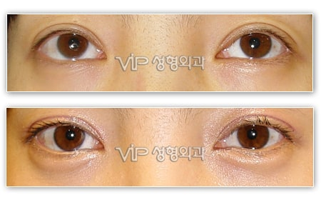 Eye Surgery - Smiley eyes surgery