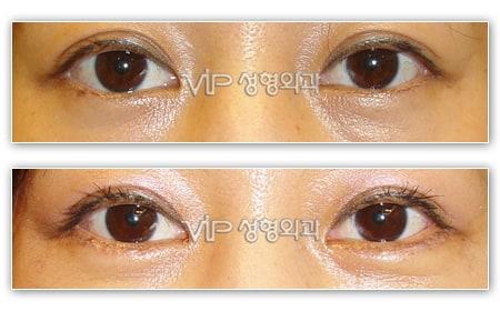 Eye Surgery - Smiley eyes surgery