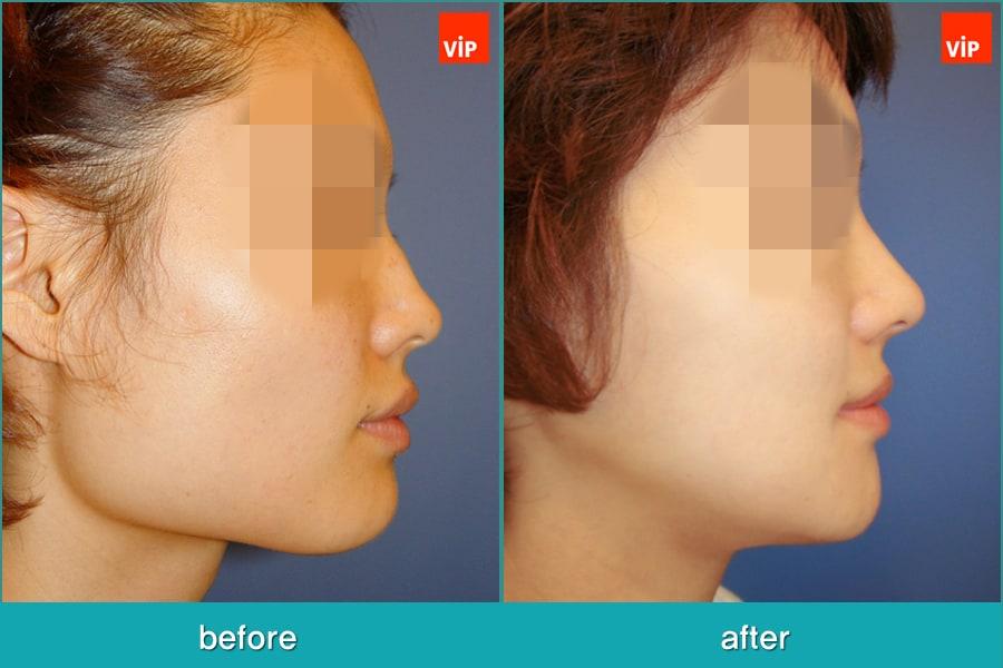 Nose Surgery, Septal Deviation, Facial Bone Surgery - Septal Cartilage Rhinoplasty, Face Contouring Surgery, V-line Surgery, Cheekbone Reduction