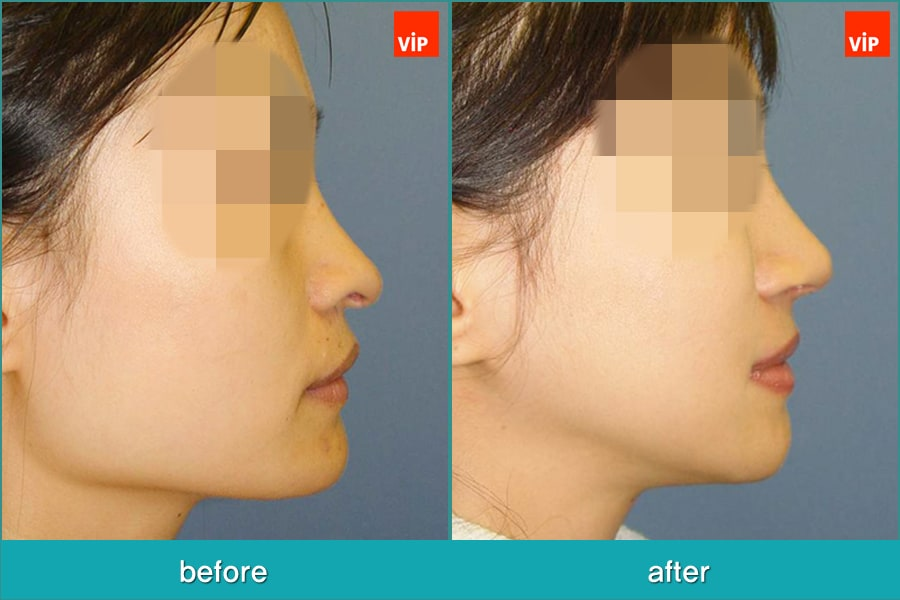 Nose Surgery, Septal Deviation, Facial Bone Surgery - Rhinoplasty and Deviated Septum Surgery, Face Contouring Surgery, Jawline Reduction