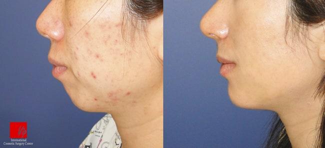 Facial Bone Surgery - Genioplasty
