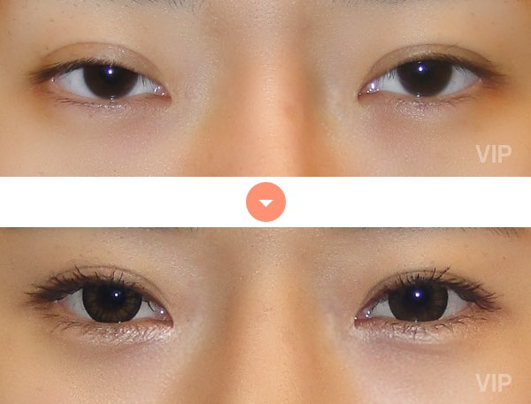 Eye Surgery - Double Eyelid Surgery