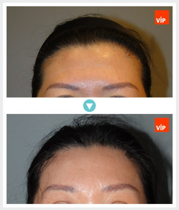 Face Lift - Endoscopic Forehead Lift