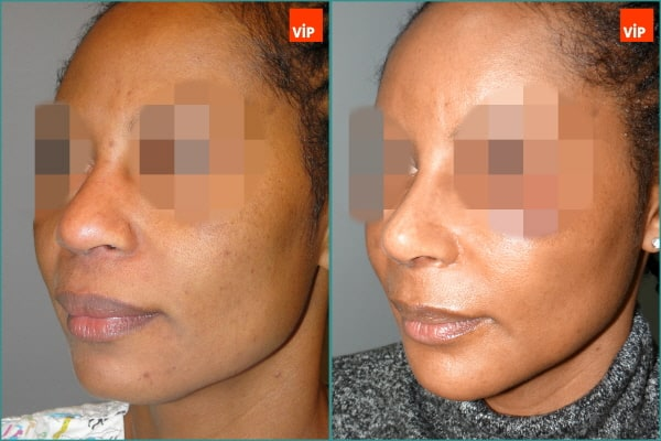 Nose Surgery - Rib cartilage rhinoplasty