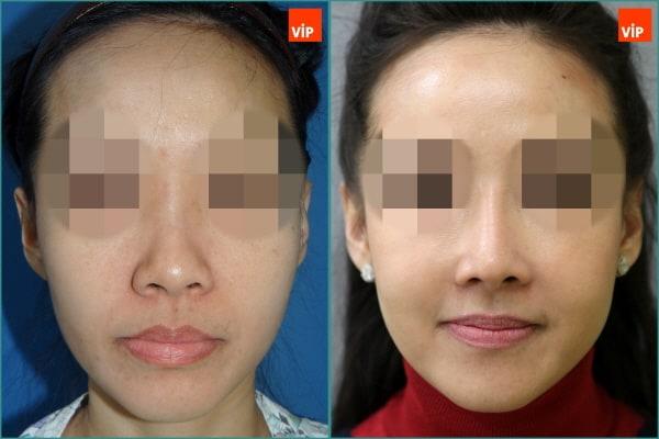 Nose Surgery, Stem Cell Fat Graft - Combination Rhinoplasty, Fat Graft