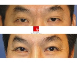 Forehead endoscope surgery & Upper blepharoplasty
