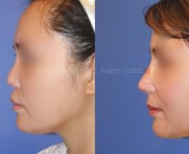VIP Harmony face with Rib cartilage