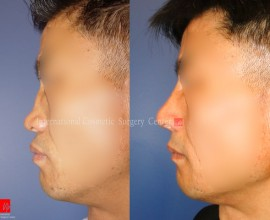Flat nose correction with Rib cartilage (collapsed due to fa…