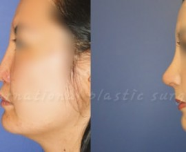 Harmony rhinoplasty  using Rib cartilage