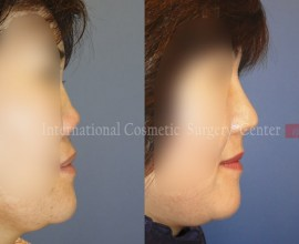 Collapsed nose due to side effects from foreign implant - Re…