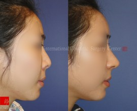 Silicone revision case- Rib cartilage rhinoplasty