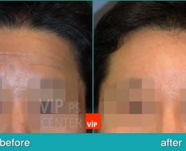 Forehead endscope lift