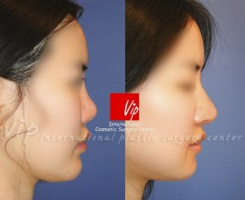 Ribcartilage rhinoplasty - Improvement of mouth protrusion