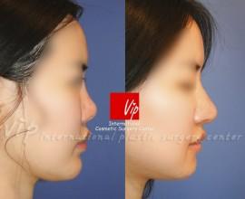 Ribcartilage rhinoplasty - Improvement of mouth protrusion
