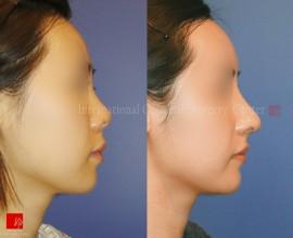 Harmony rhinoplasty