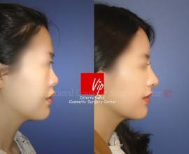 Ribcartilage rhinoplasty