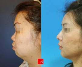 Harmony Face which includes rhinoplasty and genioplasty