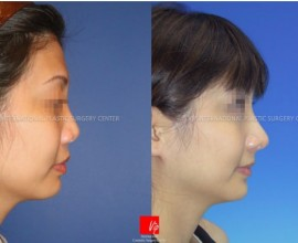 Asian nose with bulbous tip and wide alar - changed as highe…