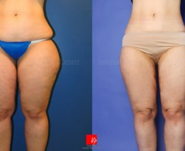 Body Liposuction