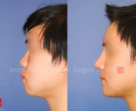 Rhinoplasty, Genioplasty