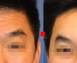 Forehead endoscope surgery-improvement of deep wrinkles