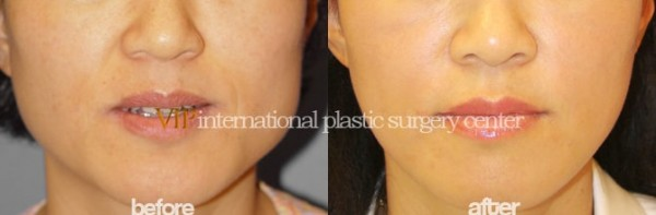 Facial Bone Surgery - Wide square jaw reduction