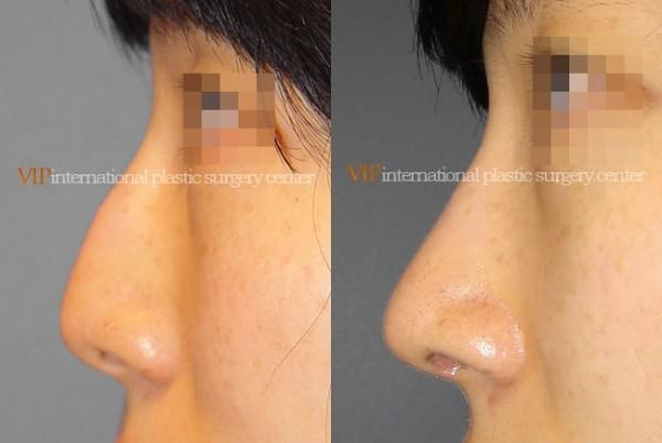 Nose Surgery - Nose bridge correction