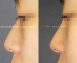 Nose bridge correction