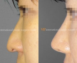 Long nose with Depressed columella