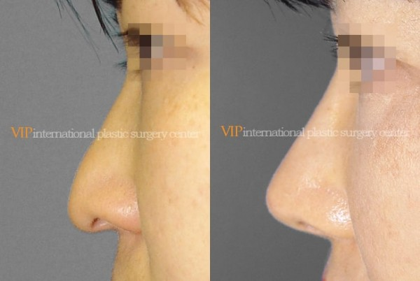 Nose Surgery - Long nose with Depressed columella