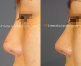 Silicone infected nose revision