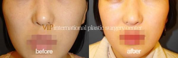 Facial Bone Surgery - Zygoma reduction