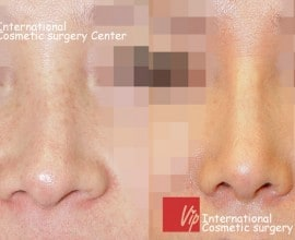 Deviated nose correction