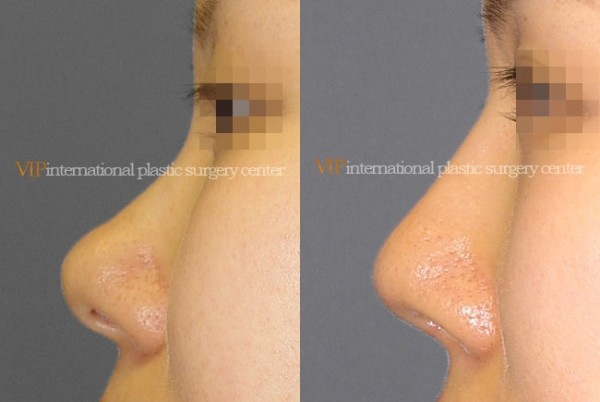 Nose Surgery - Bulbous nose rhinoplasty