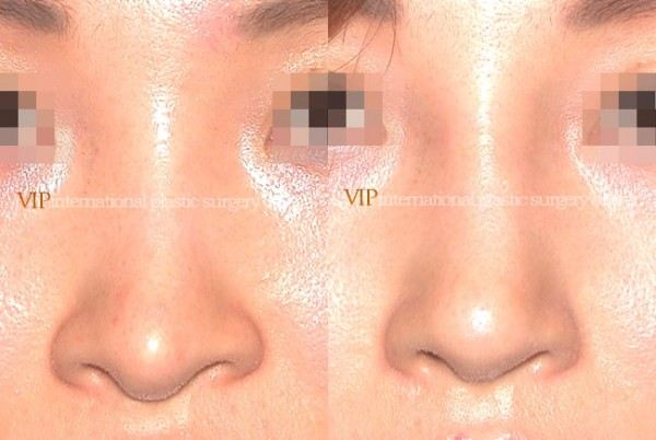 Nose Surgery - Revision rhinoplasty - Silicone showing nose