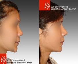 Septal cartilage rhinoplasty - Wide nasal bone reduction & A…