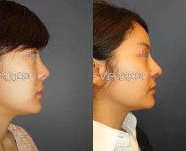 Revision of short nose - Rib cartilage rhinoplasty