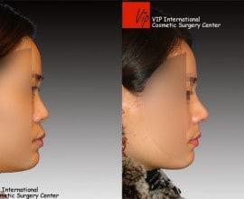 VIP Harmony rhinoplasty (correction of mid face retrusion & …