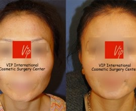 Temple & cheek Fat graft
