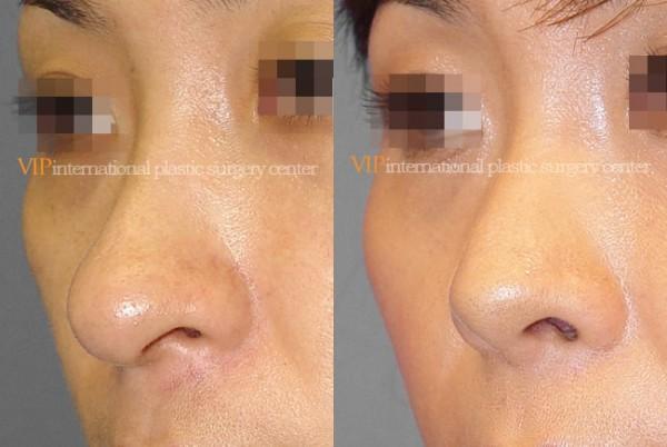 Nose Surgery - Long nose correction