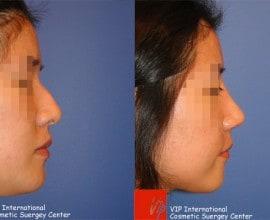 Humped nose correction rhinoplasty