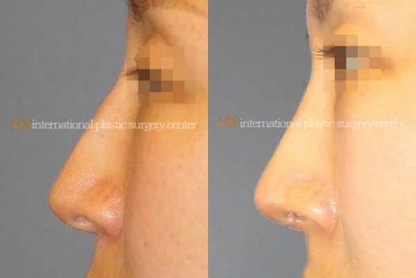 Nose Surgery	 - Long nose correction