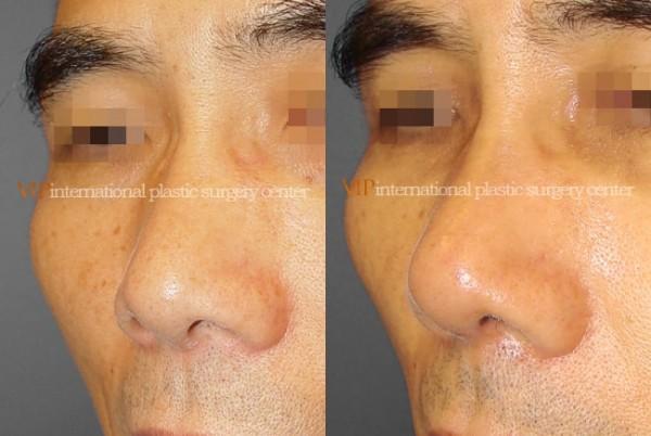 Nose Surgery - Nostril correction