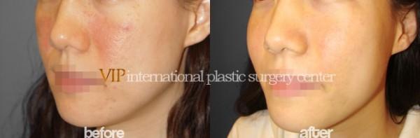 Facial Bone Surgery - Cheek bone augmentation