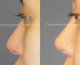 Long and Bulbous nose correction