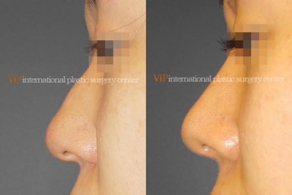 Nose Surgery - Rhinoplasty