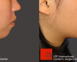 Genioplasty - bringing chin bone forward
